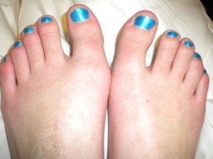 Strategically chose a super-bright color to distract from my ug-lay ankle. :D